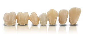 Laboratory customers can now benefit from the option of ordering 3D printed permanent restorations in seven colors from BEGO.