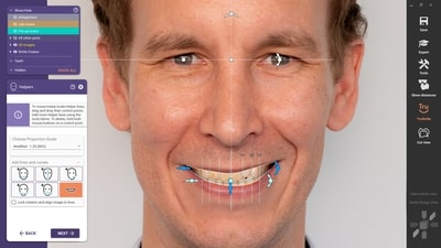 With the new DentalCAD 3.0 Galway release, exocad introduces AI technology for its Smile Creator. Facial features like the lip line or the eye position are automatically detected to assist the smile design. This helps the user reach aesthetic proposal faster and saves valuable time when designing cases. (Source: exocad GmbH)