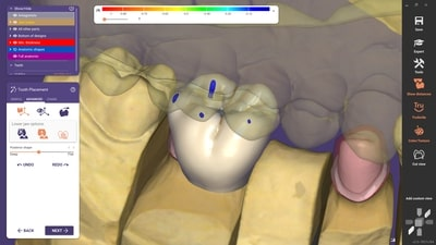 exocad's new software release DentalCAD 3.0 Galway, with 90 new and 80 optimized features, is now available. With this new release, the company introduces the new Instant Anatomic Morphing, offering automatic adaptation of teeth in real time, and thus improving speed and precision for the anatomic tooth placement. (Source: exocad GmbH)