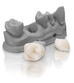 VarseoSmile Crown plus is the world's first approved tooth-colored, ceramic-filled hybrid material for 3D printing of permanent single crowns, inlays, onlays and veneers. (© BEGO)