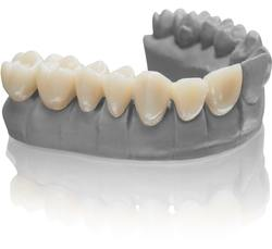 VarseoSmile Temp is ideally suited for 3D printing of temporary crowns and bridges, inlays, onlays and veneers. (© BEGO)