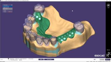 PartialCAD 3.0 Galway with new and advanced features to design high-quality removable partial dentures is now available. This new release offers a smooth integration with exocad's DentalCAD and enhances the digital CAD/CAM possibilities for exocad users and dental technicians, providing simpler solutions to complex cases. (Source: exocad GmbH)